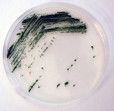 Anabaena (Nostoc) sp. PCC7120