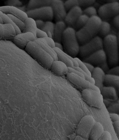 Bacillus cereus microscopía de barrido