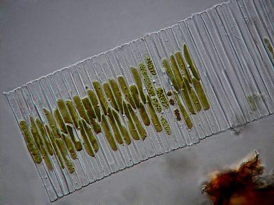 Fragilaria sp