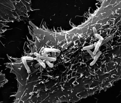 Rhodococcus equi