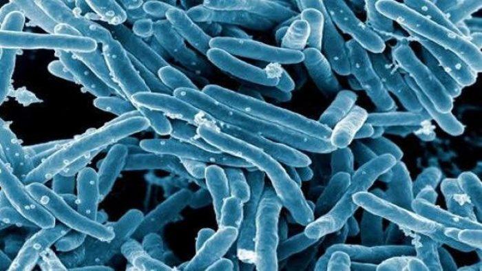 tuberculosis-ksvG--620x349@abc